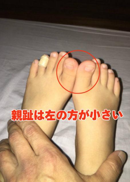 左右の足の親指