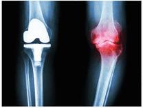 人工関節と膝のレントゲン